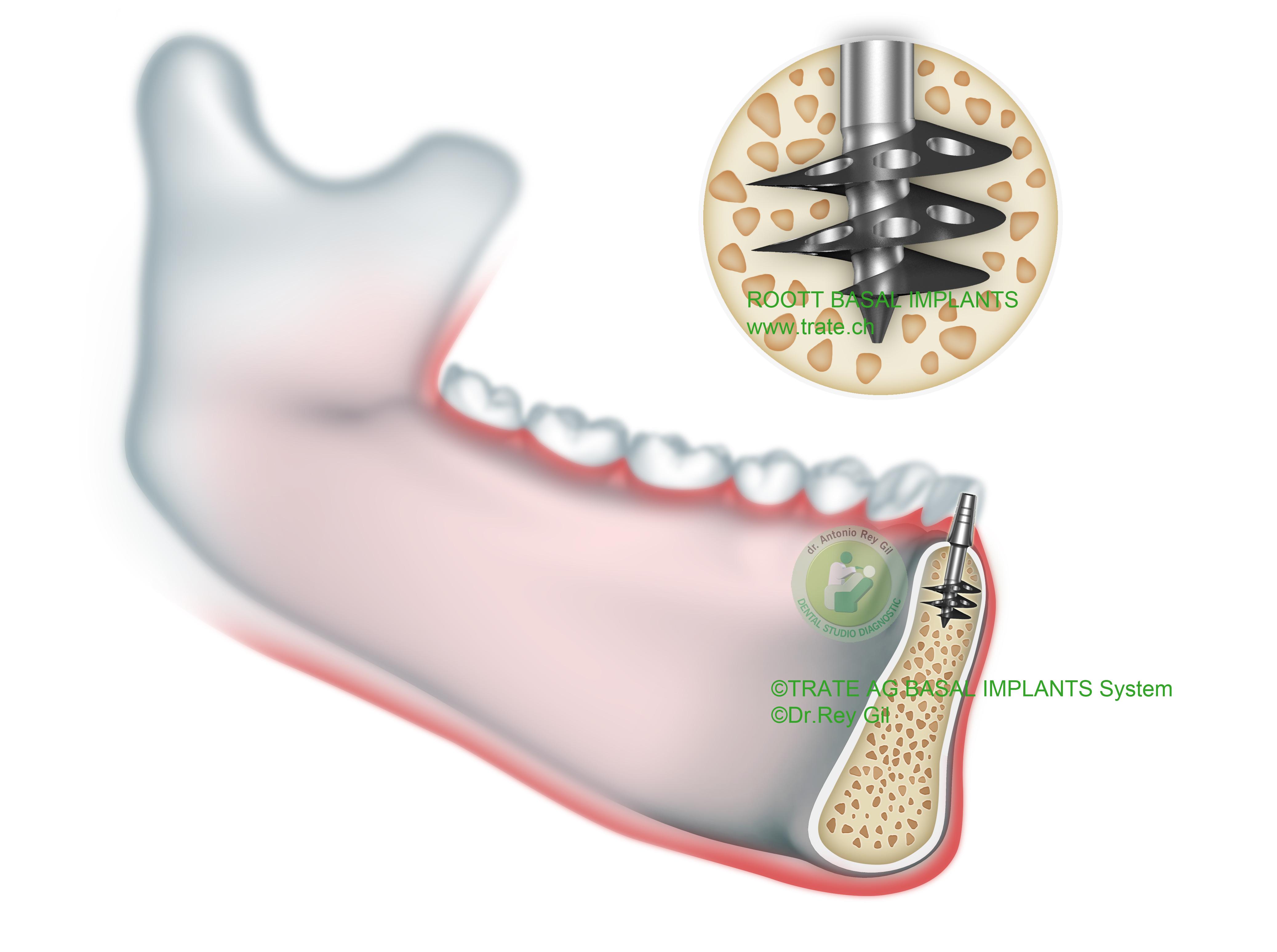 Implante Basal Roott