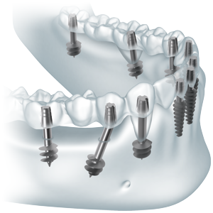 implantes basales