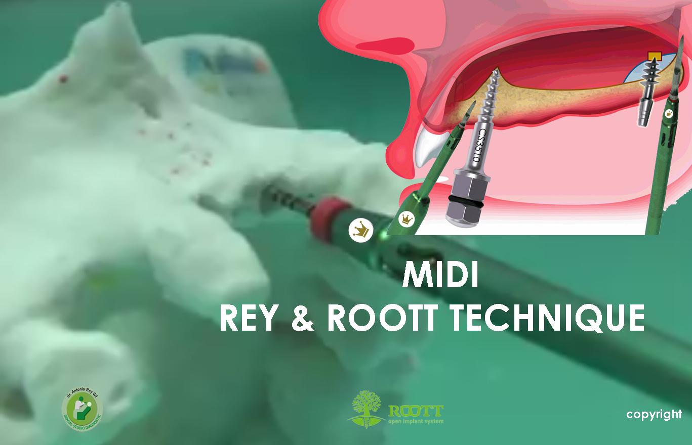 MIDI REY & ROOT