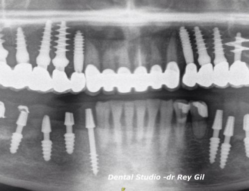 Implantes Valladolid.Midi TECHNIQUE Dr. Rey Gil