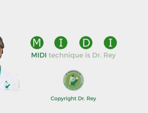 Implantes. MIDI Técnica Dr. Rey Gil. MIDI TECHNIQUE IMPLANT Dr.REY GIL