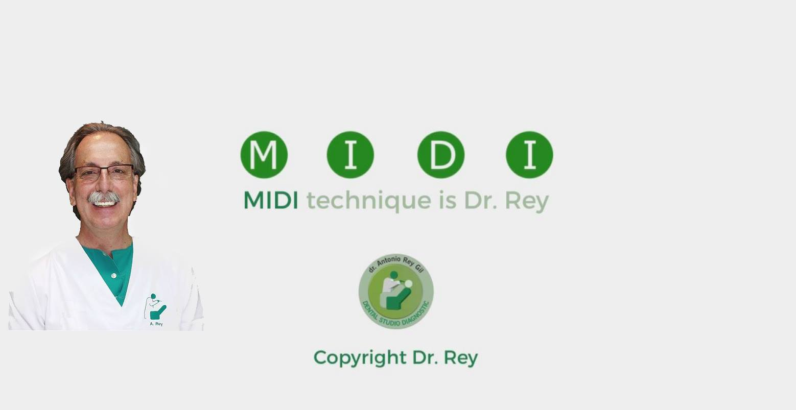 MIDI TECHNIQUE IMPLANT DR REY GIL