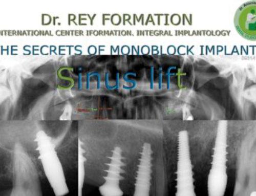 Cursos Implantes Valladolid Dr.Rey. Elevación de seno maxilar e implantes dentales.Técnica hidráulica. Implantes Sinus.