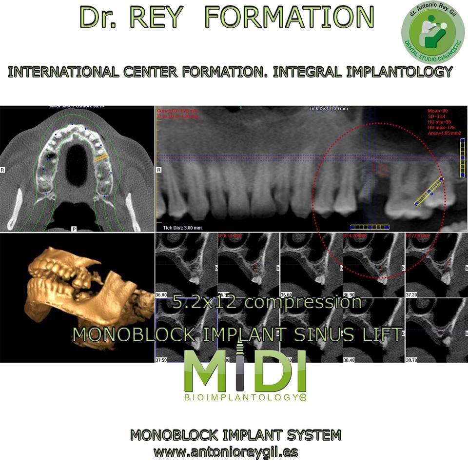 Implantes cursos.implantes Valladolid Dr.Rey.Elevación seno.