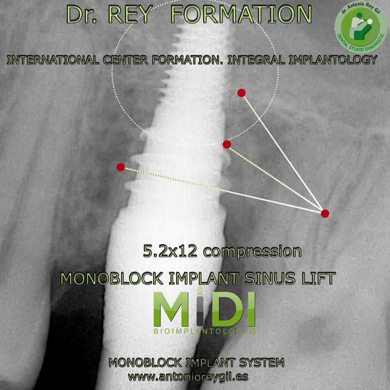 Implantes cursos.implantes Valladolid Dr.Rey