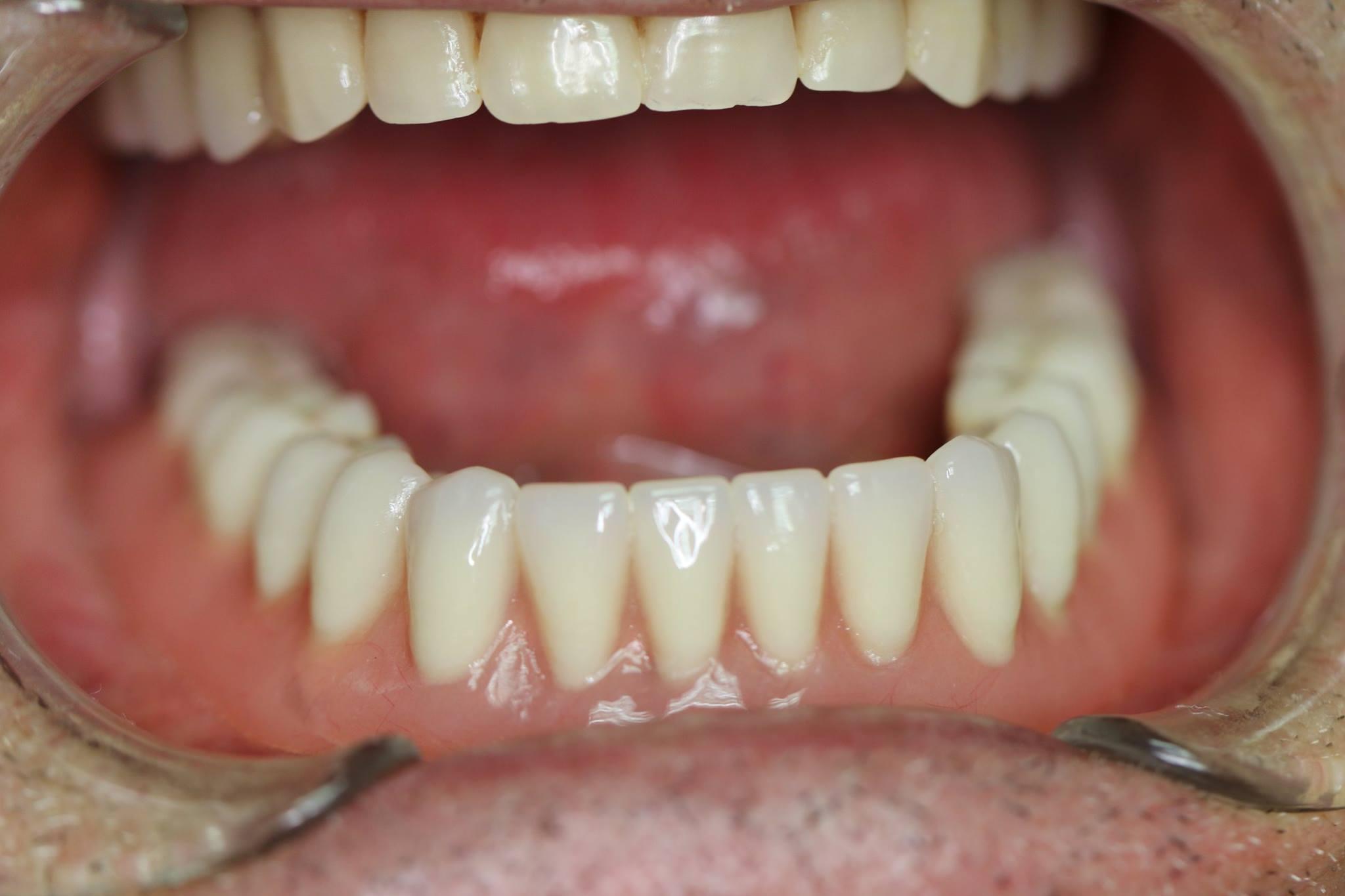 implantes dentales Valladolid Dr.Rey Gil