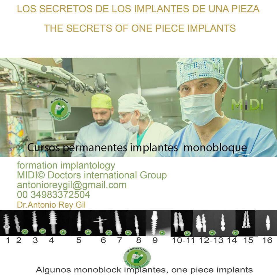 Implantes Valladolid Información