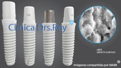 Implantes Dentales Precios Valladolid