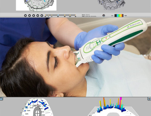 Implantes Oclusión Clinica Dental. T-Scan
