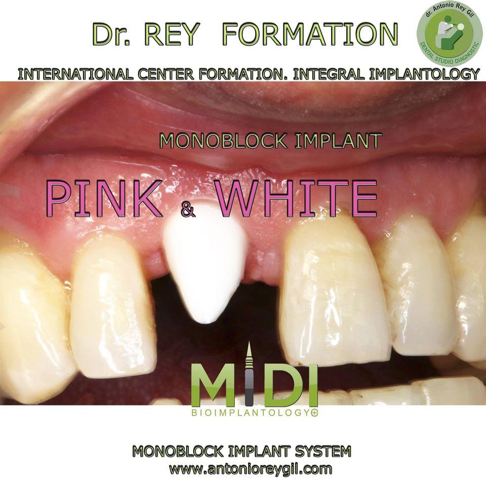 los implantes dentales Blancos para estética